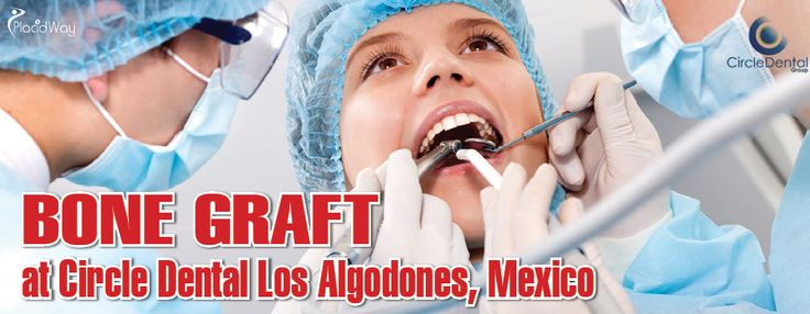 #BoneGraftMexico - Circle Dental Group, Los Algodones, Mexico is one of the best dental clinics in Los Algodones that can provide high-quality dental procedures such as bone grafting and dental implant restoration. At Circle Dental, you can avail of bone grafting for ONLY $400!