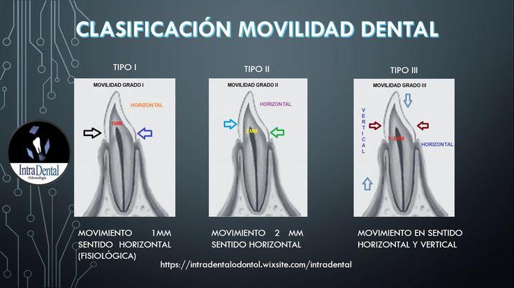 Movilidad Dental que es y porque se da