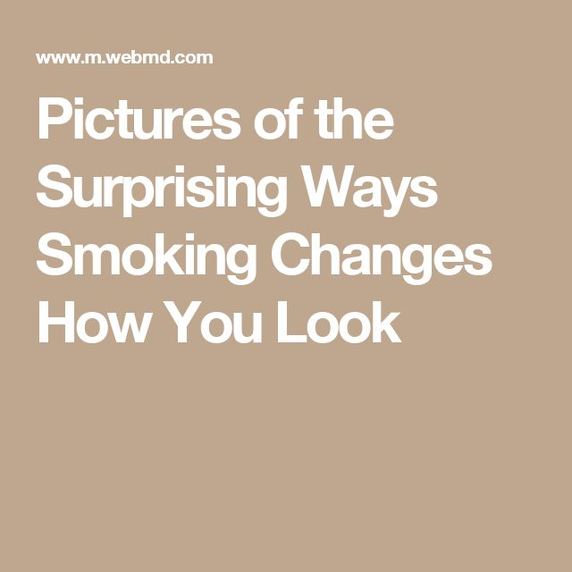 1000+ Ideas About Nicotine Withdrawal On Pinterest