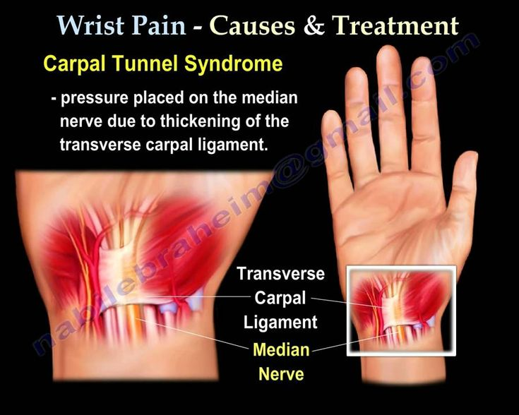 Natural Cure For Carpal Tunnel Pain