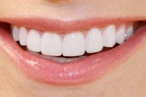 Last van tandplak, tandsteen en een slechte adem? Met dit natuurlijk product is dit zo opgelost.