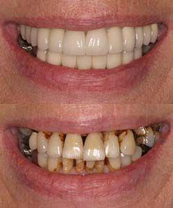 smoking affects on your smile dental hygiene dental