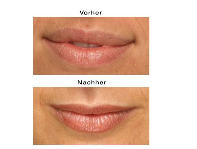 Was Kostet Lippen Permanent Make Up