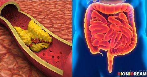 Colesterolo alto? La causa è nel tuo intestino