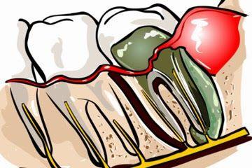 Abcès dentaire | soins dentaires