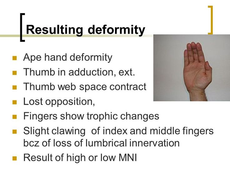 Image Result For Ape Hand Deformity Ortho Hands