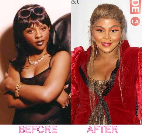 Lil Kim Before Surgery Lil Kim Before After Plastic