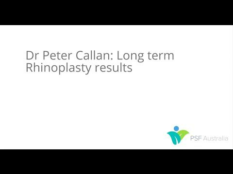 Dr Peter Callan: Rhinoplasty long term results - Plastic Surgery Forum - Blog