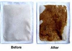 DIY Foot Detox Pads, not sure if i'll ever try this, but nice to have as a reference.