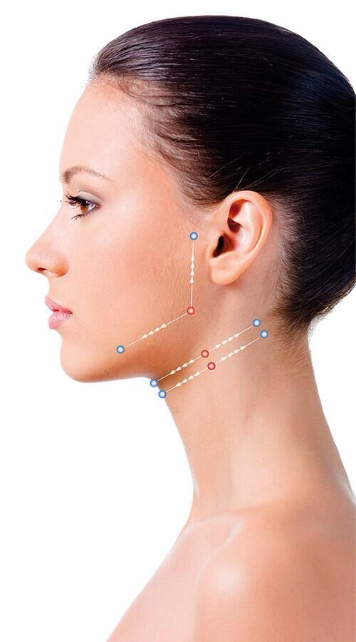 13 best Silhouette (A new treatment in facial rejuvenation ...