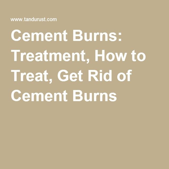 Cement Burns: Treatment, How to Treat, Get Rid of Cement Burns - Cement burn is a type of chemical burn on skin. The only difference of cement burn is, burn effect is felt after a day or two, unlike in other burn injuries.Most often cement burns on skin occurs in workers who do construction work. Cement contains a caustic alkaline compound for its binding ability, this caustic compound when comes in contact with skin or eyes can cause burns....