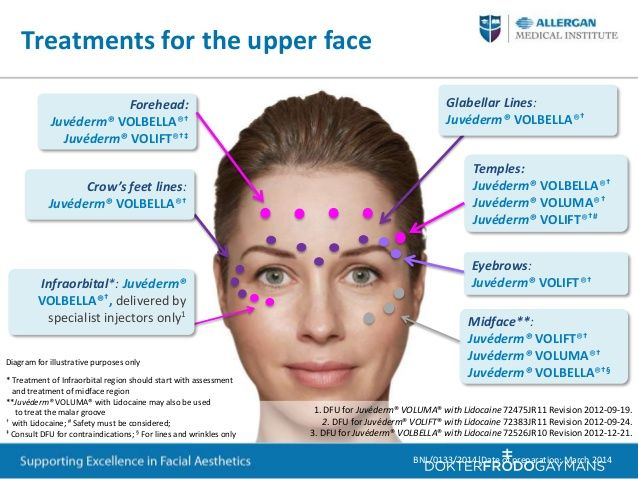 d4d385aece799c57f2c95dd1c5bf4bba--botox-training-face-treatment.jpg