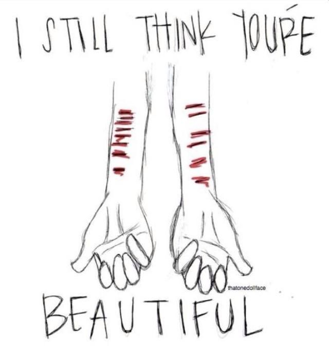 Emo Quotes About Suicide: Scars Or No Scars, You Are Beautiful, And You Are Loved By Me