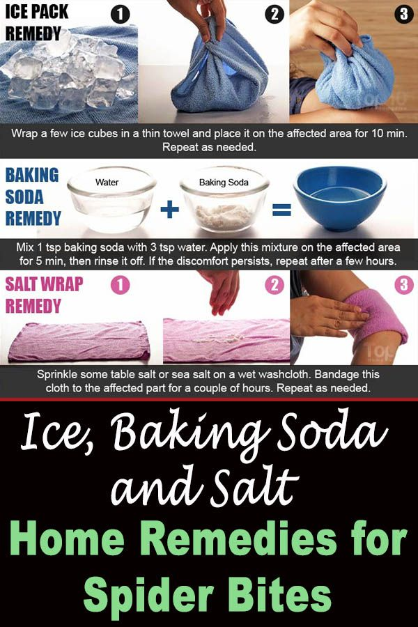Ice, Baking Soda and Salt Home Remedies for Spider Bites.
