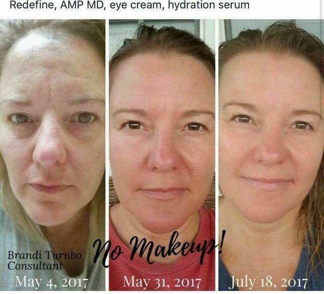 Want To Age Backwards Wrinkles Age Spots Acne Sensitive Skin Eczema Rosacea Lar Sensitive Skin Treatment Sensitive Skin Care Routine Sensitive Skin Care