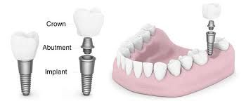Contact Ludhiana Dental Center, if anyone of you is going for dental implant and seeking for the best and low cost dental implant center in Punjab. We are a well known center in Ludhiana, Punjab, that uses the most advanced techniques for treatments. For more details and to get your appointment scheduled with our doctor, please visit our website http://ludhianadentalcentre.com/dental-implants/