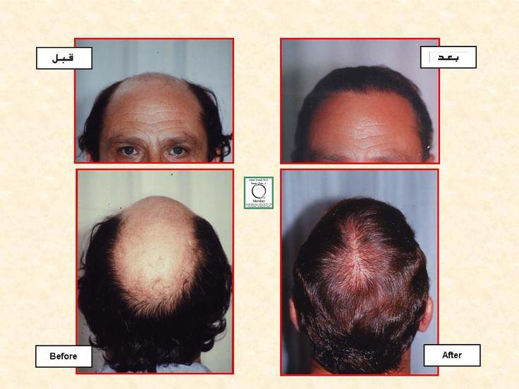 Hair Transplant plasticsurgery cosmeticsurgery Facial