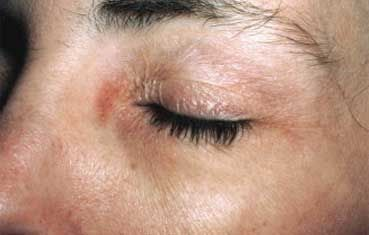 Contact Dermatitis - Signs, Symptoms, and Treatment Methods #AAD