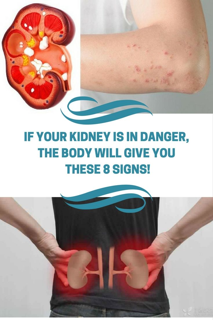 •IF YOUR KIDNEY IS IN DANGER, THE BODY WILL GIVE YOU THESE 8 SIGNS! !!zz