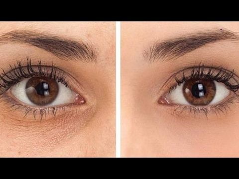 How to Remove Dark Circles Under Eyes at Home / 100% Works - YouTube