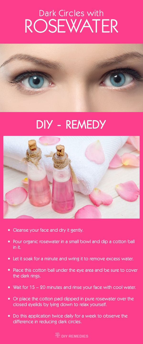 Natural home remedies will give a helping hand for improving your dark under eye rings. Rosewater is one such natural ingredient that works wonders in diminishing these ugly dark circles.