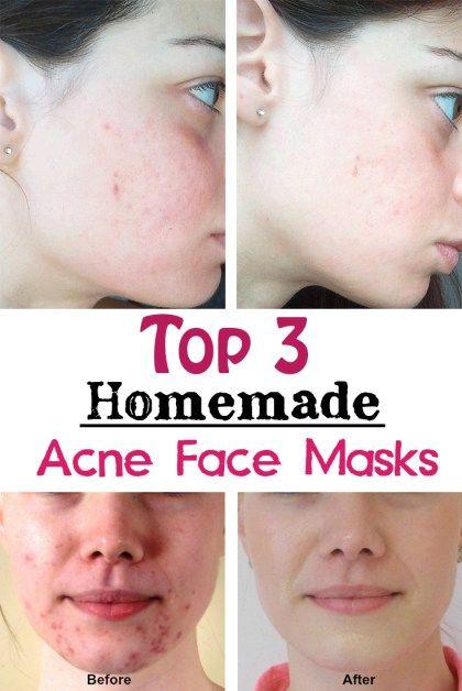 Top 3 Homemade Acne Face Masks