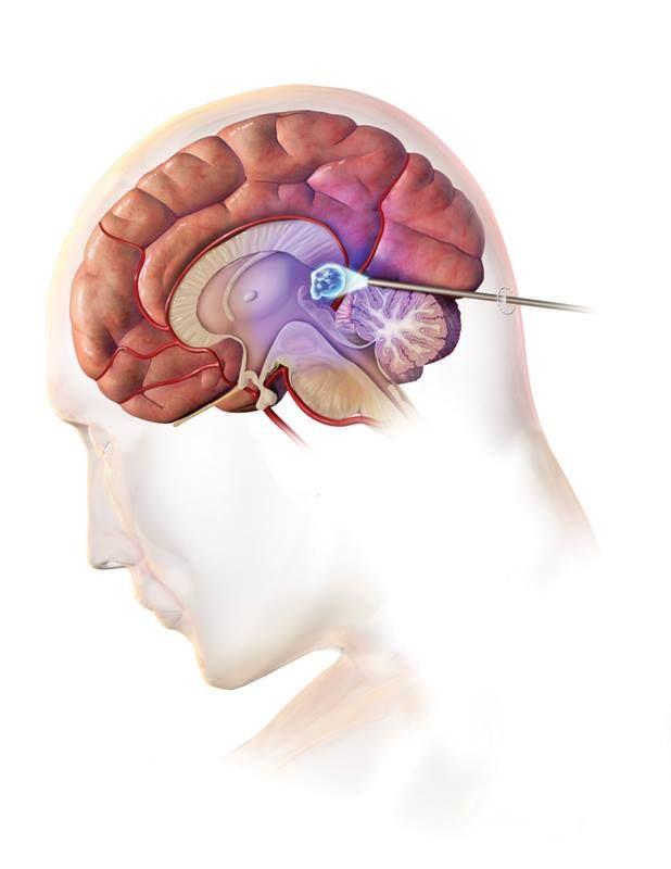 19 best Pineal tumor images on Pinterest | Brain tumor, Pineal gland ...