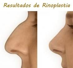resultados de la rinoplastia sin cirugía