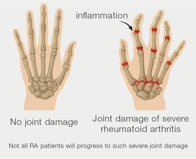What are the symptoms of arthritis in hands?