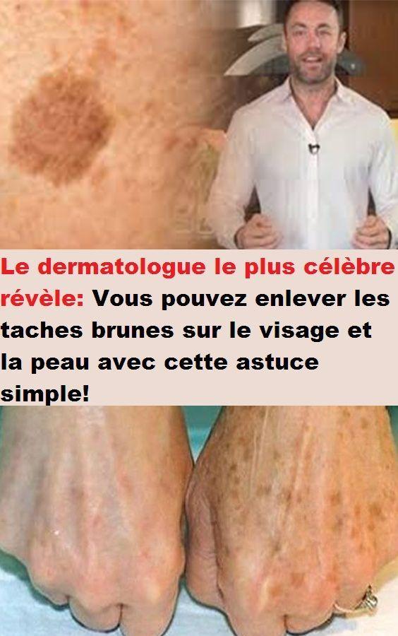 Le dermatologue le plus célèbre révèle: Vous pouvezenleverles taches bru…