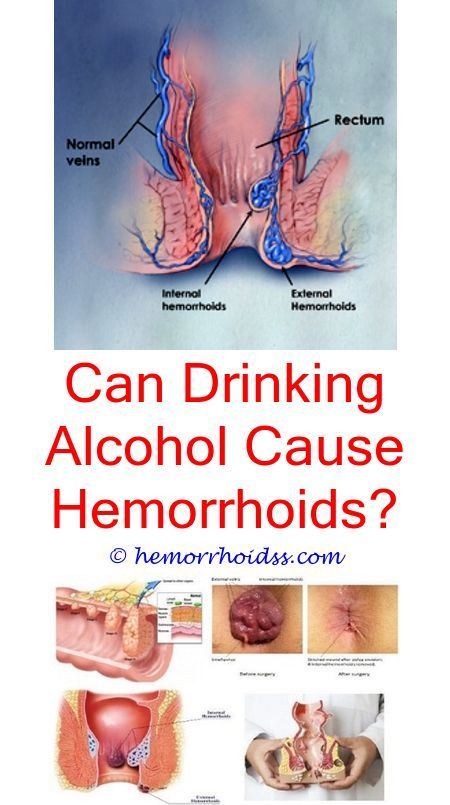How To Get Hemorrhoids Out Of Your Life Hemorrhoid Diet