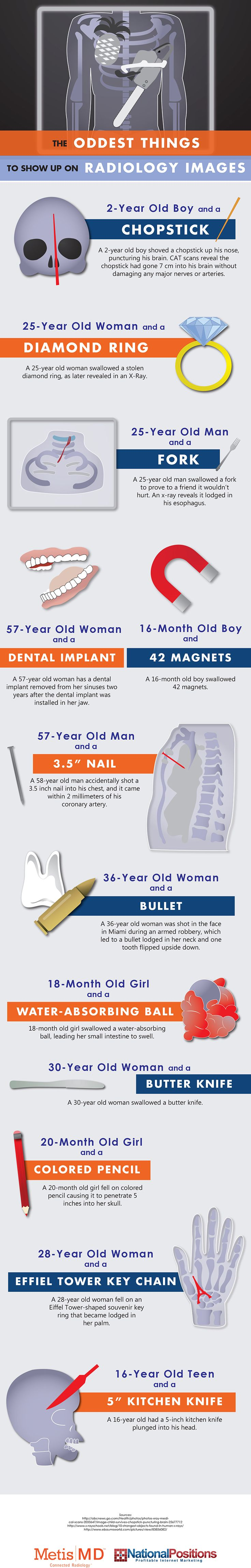 Infographic Of The Day: The Oddest Things To Show Up On Radiology Images