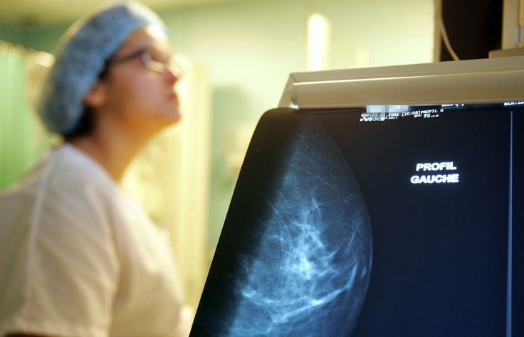 Le chercheur Éric Pelletier a calculé que, pour 10 000 femmes, 228 patientes de plus doivent subir un deuxième examen à la suite d'un résultat anormal avec la technologie DR, par rapport au film.