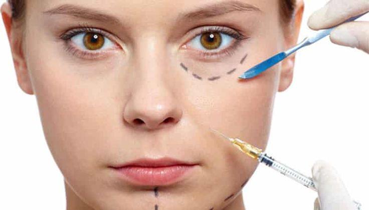 7 cuidados que se deve ter ao fazer preenchimento facial  O sonho de acabar com as marcas de expressão causadas pelo tempo como bigode chinês, aquela
