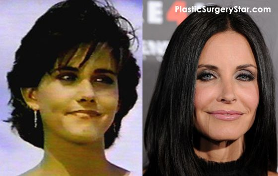 Courtney Cox has recently joined the plastic surgery craze.  In the before and after photos it's clear that she's had Botox and other cosmetic surgery.