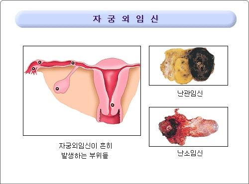 임신 - Google 검색