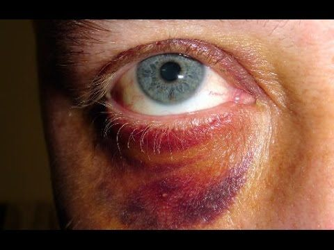 How to Get Rid of a Black Eye Fast