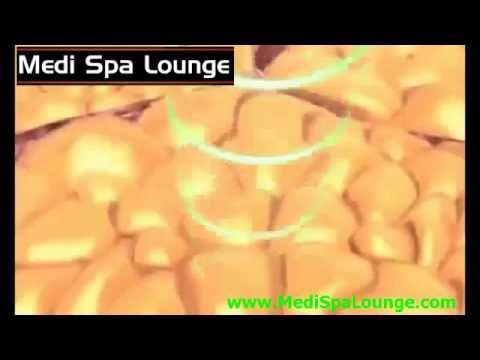 ULTRASOUND CAVITATION SURREY   NON SURGICAL FAT REMOVAL