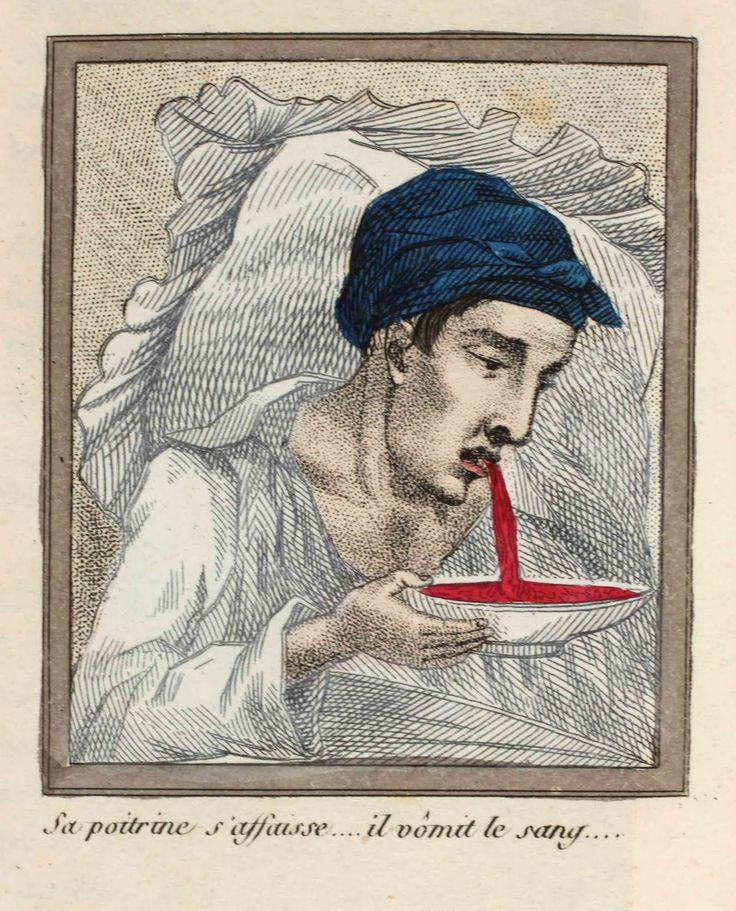 Le Livre Sans Titre, The Dangers of Masturbation, 1830.