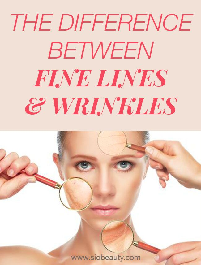 Fine Lines And Wrinkles What S The Difference And How To Care For Each Daily Skin Care Routine Anti Aging Skin Care Anti Aging Skin Products