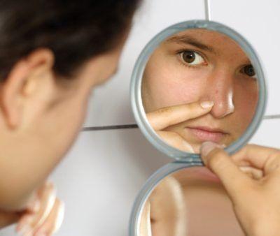 Conheça os problemas mais comuns de pele: eczema e psoríase - Foto: Getty Images