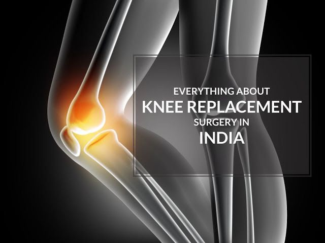 If you are experiencing knee replacement surgery in India then it is necessary for you to visit a true professional who can be able to offer you with ligament injury knee treatment. These days, you will easily get several doctors who perform these treatments, however, you have to choose the best one in order to get the better results.