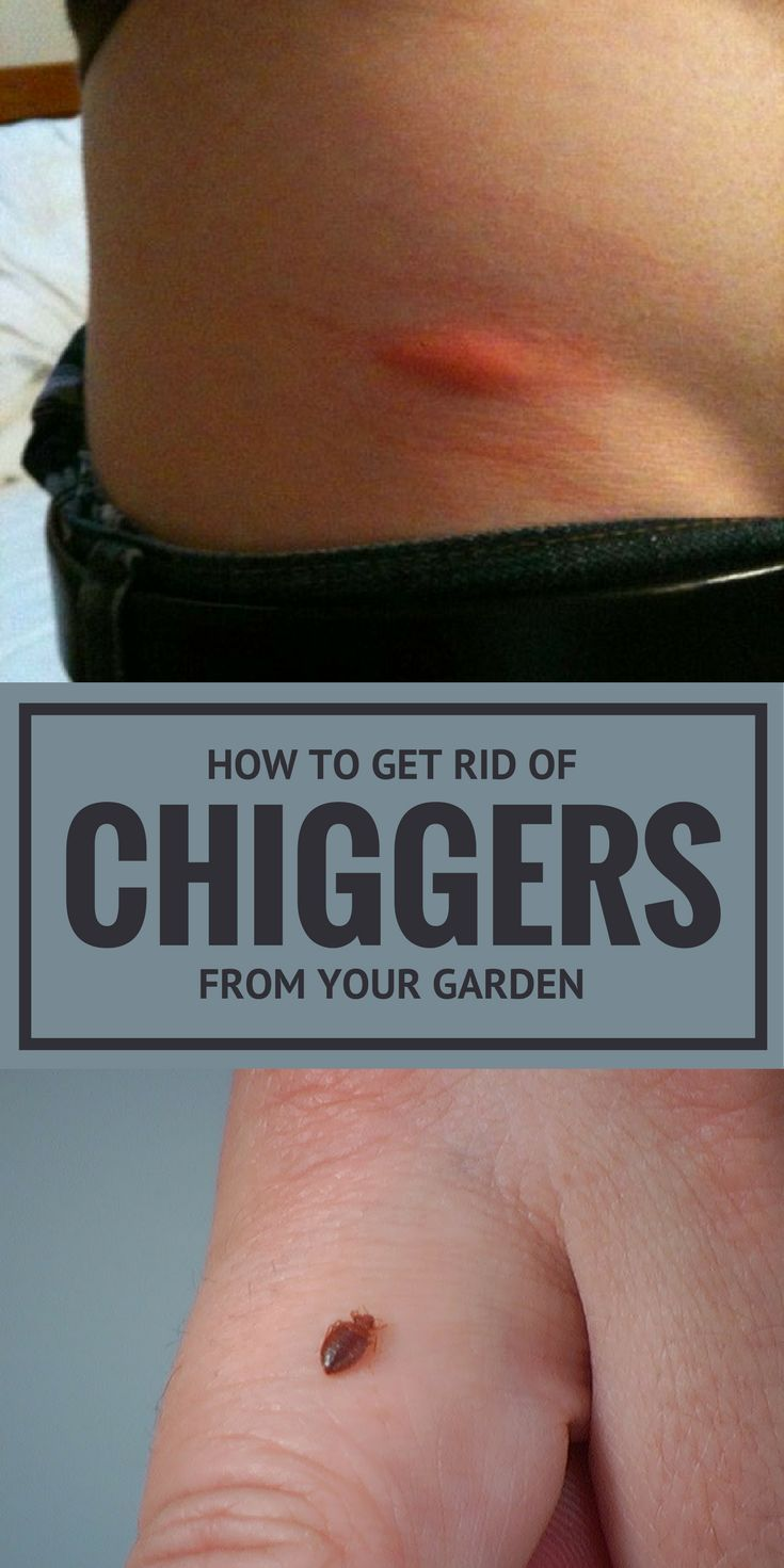 How to get rid of chiggers from your garden garden pest