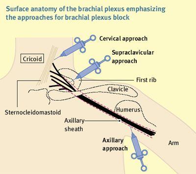 8 best images about supraclavicular brachial plexus block on ...