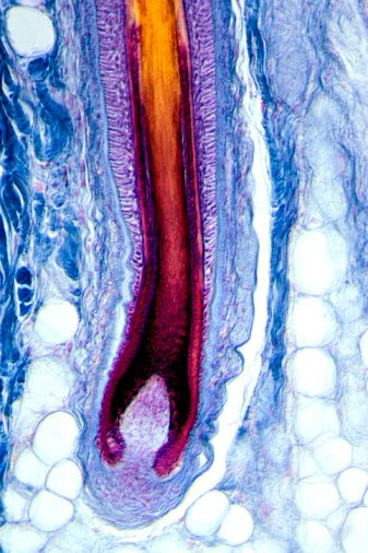 Human scalp section with hair bulb and shaft