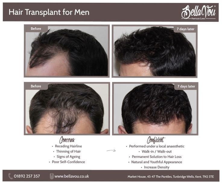 Hair transplant before and after BellaVou.co.uk