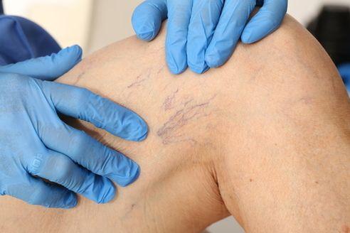 Fungo su mani tra trattamento delle dita da rimedi di gente