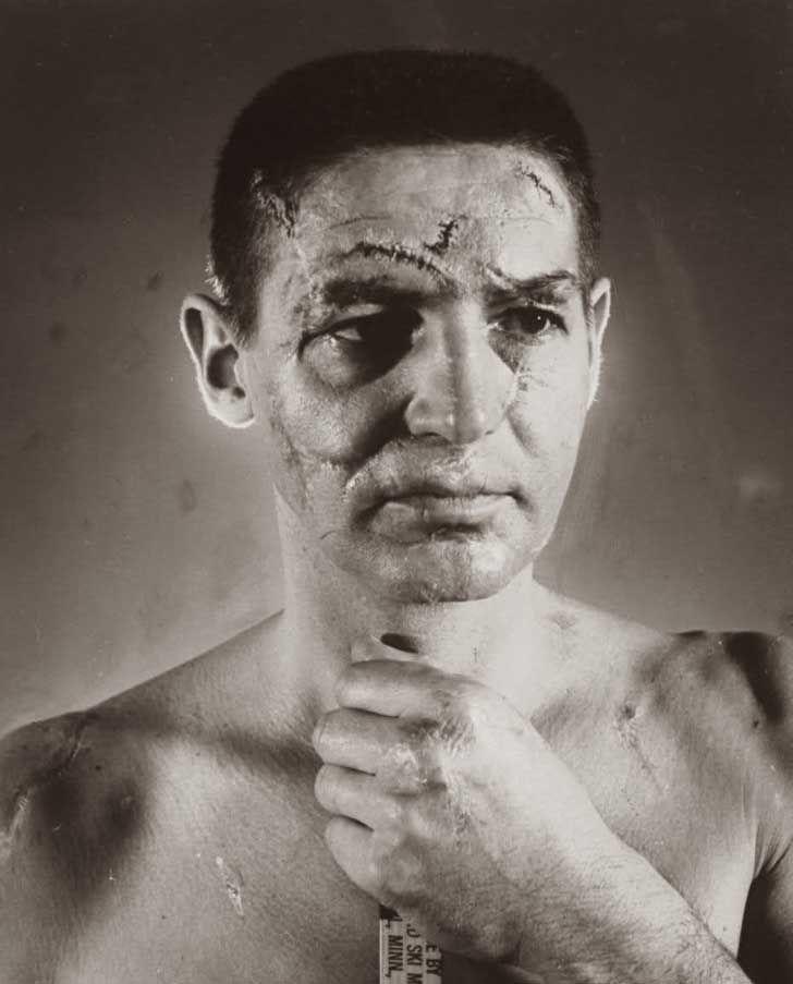 1966. Cicatrices de un portero de hockey antes de que existieran los cascos con las máscaras.