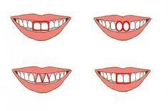 Os dentes incisivos revelam algo surpreendente sobre a sua personalidade, acompanhe: