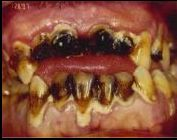 Meth Mouth Photo 8